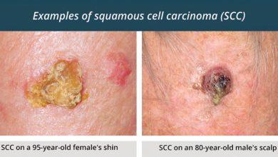 سرطان سلول سنگفرشی