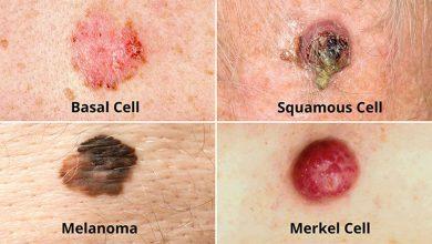 سرطان سلول بازال