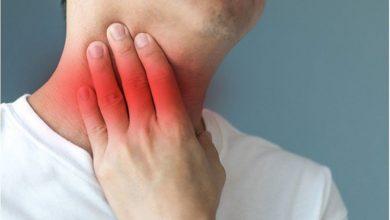 تصویر از همه چیز درباره مونونوکلئوز عفونی یا بیماری بوسه