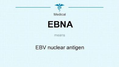 آزمایش آنتی ژن هسته ای (EBNA)