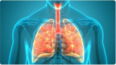 بیماری سارکوئیدوز
