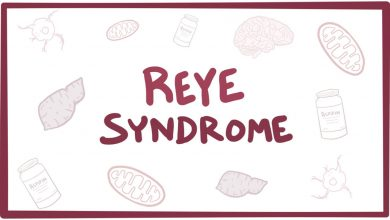 سندروم ری چیست